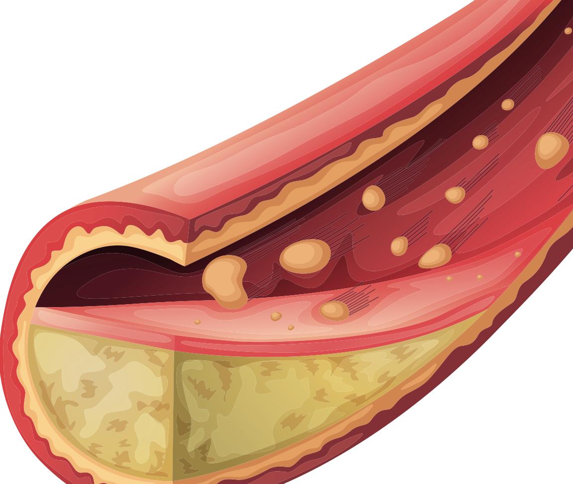 Velká cholesterolová lež – MUDr. Dwight Lundell, statiny a omega-3