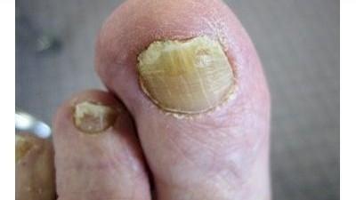 Tento super jednoduchý recept Vás navždy zbaví mykózy nehtů na nohách