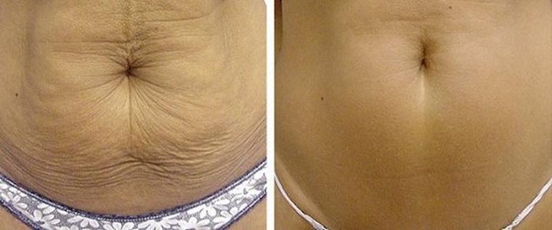 Jak přírodně napnout pokožku břicha, tváře či jinde na těle