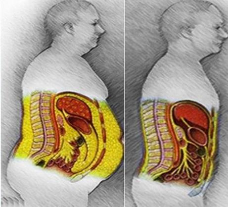 Jak si udělat kompletní detox od cukru, schudnout a zbavit tělo závislosti