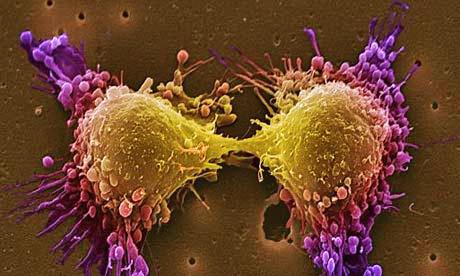 9 léčebných terapií na rakovinu, o kterých vám váš lékař nepoví