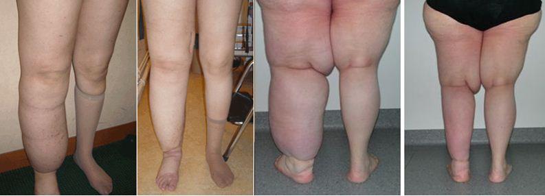 Proč narůstají problémy sotoky končetin, zavodněním těla a obezitou?
