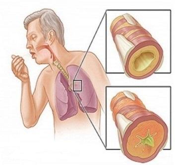 Jak se rychle zbavit hlenů zkrku, nosu a průdušek