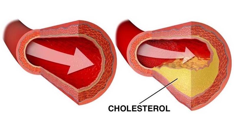 usazeny cholesterol