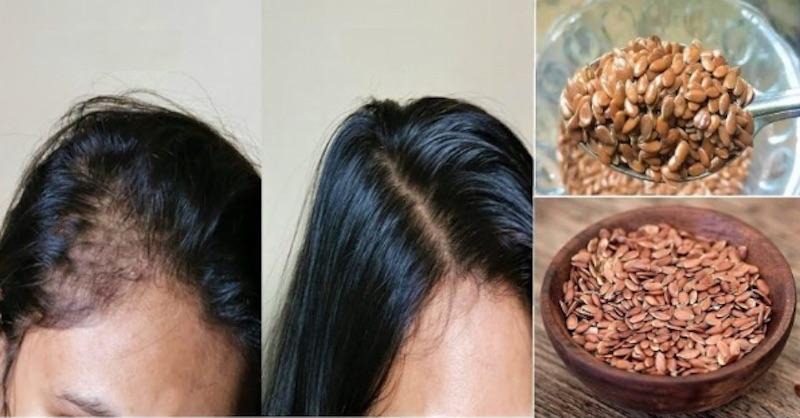 lnena seminka vlasy