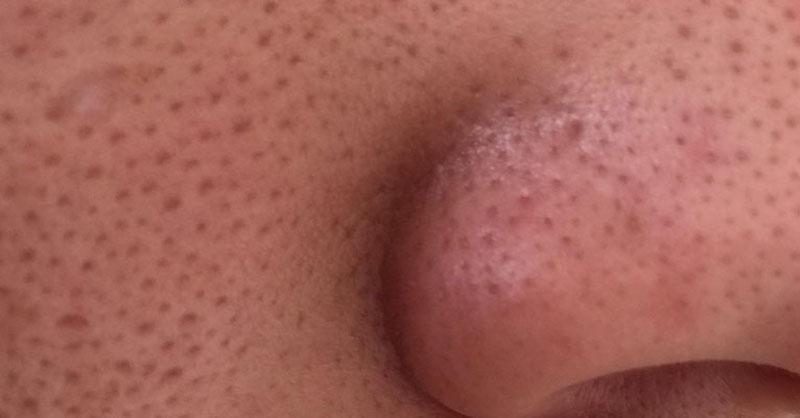 Nejúčinnější ověřené způsoby, jak odstranit velké póry na obličeji
