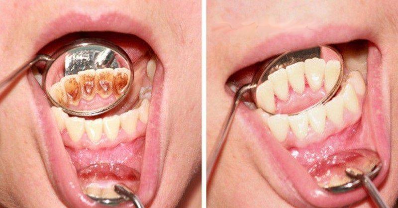 Jak se zbavit zubního kamene a onemocnění dásní bez drahých procedur