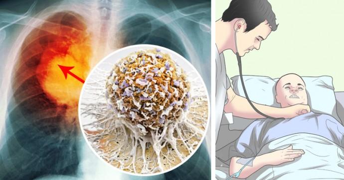 Největší tajemství onkologie odhaleno: Skutečná pravda o chemoterapii a ozařování