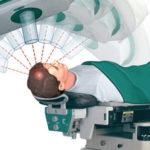 rádioterapie