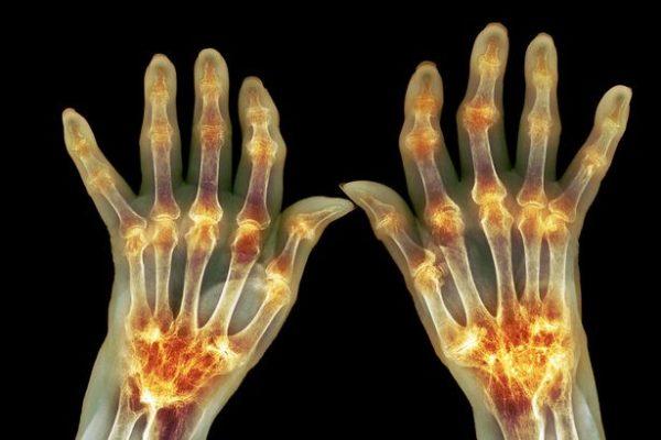 Lékaři nechápou: Tento jediný minerál vyléčil artritidu a křeče za 4 týdny u 97% pacientů