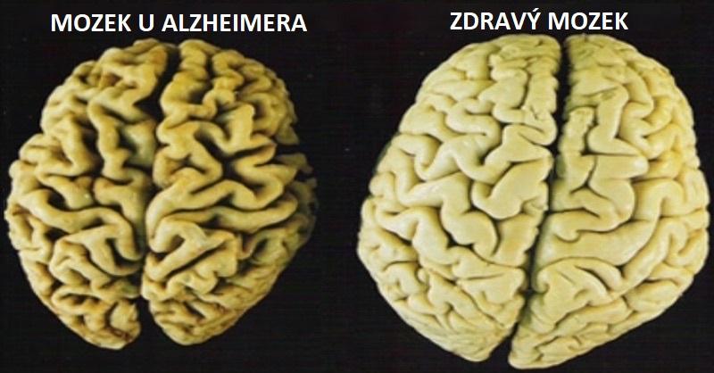 mozek alzheimer