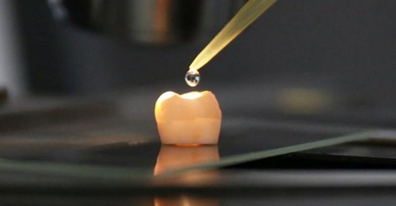Konec plombám a výplním! Vědci vyvinuli převratnou novinku na regeneraci zubů