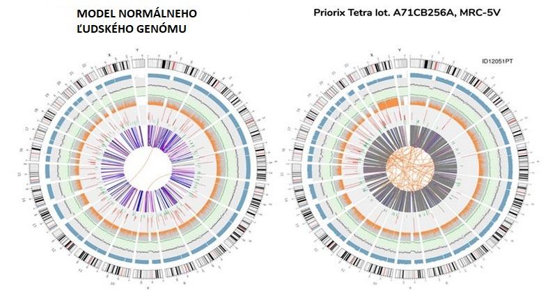 Lékařský horor: Ve vakcíně objevili celý genom potraceného plodu a 560 rakovinných genů