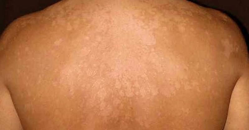 Jak přírodně vyléčit mykózy kůže, když nechcete chemii od lékaře