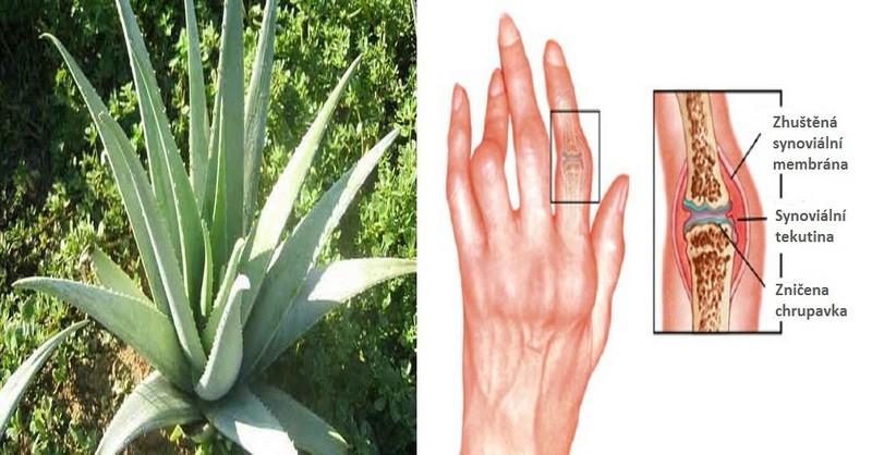 Proti artritidě bojujte těmito přírodními bylinkami a oleji